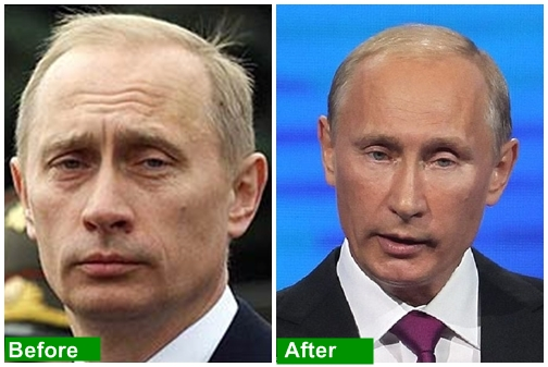 vladimir-putin-facelift-before-after-2
